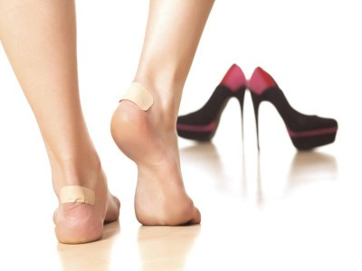 home-remedies-shoe-bites