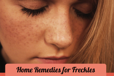 Home Remedies for Freckles