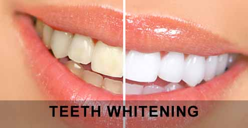 Teeth-Whitening-home-remedy