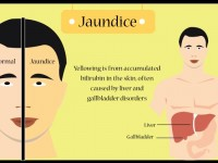 jaundice-home-remedy